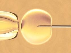 סיכויים וסיכונים בטיפולי פוריות בגיל השלישי