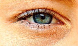 כל המידע על ניתוח קטרקט בעין