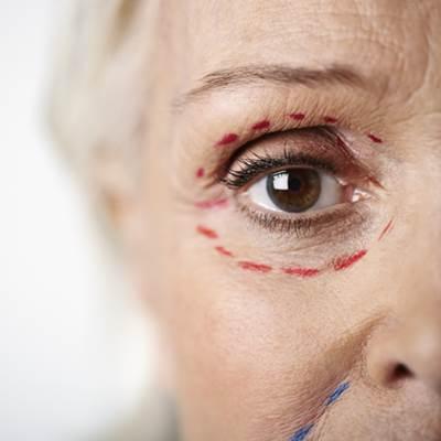 הרמת עפעפיים ללא ניתוח למבוגרות